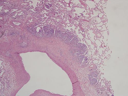 первые признаки лейкоза у детей